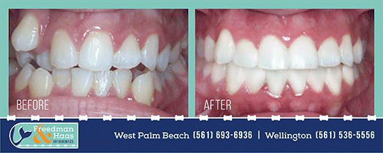 before and after Florida orthodontist
