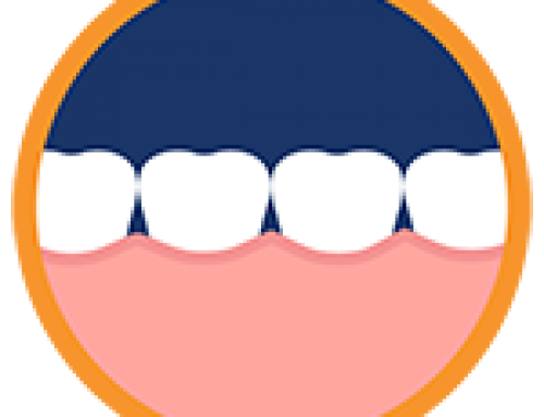 Invisalign Has The Convenience And Benefits You're Looking For!