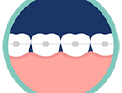 How Do Orthodontics Work To Shift Teeth?