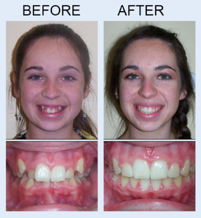 before and after Freedman and Haas Orthodontics