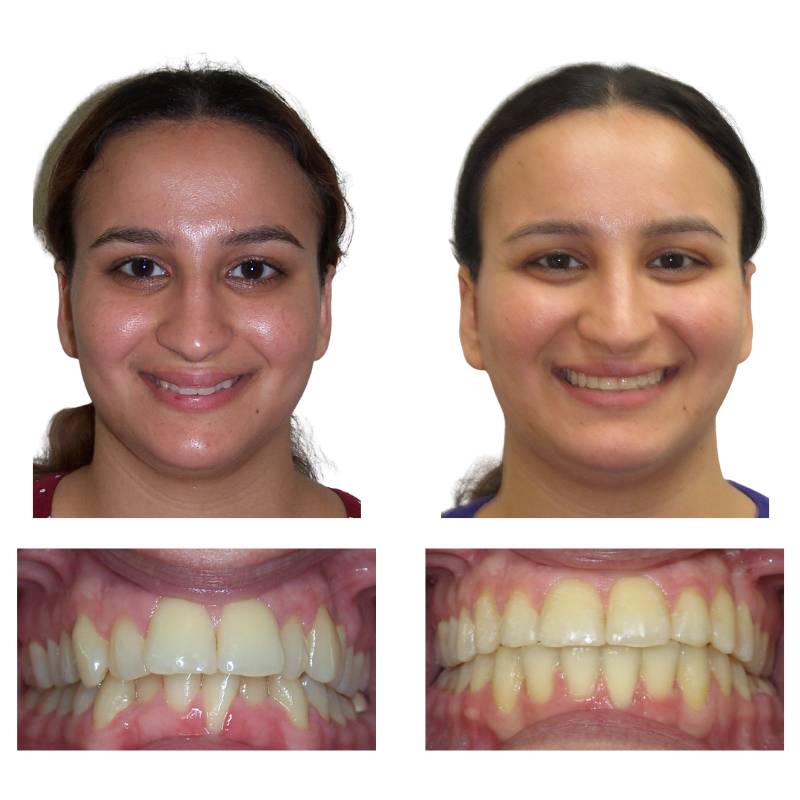 adult orthodontics results