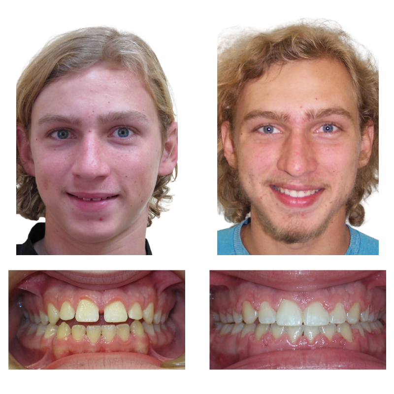 patient smile transformation results