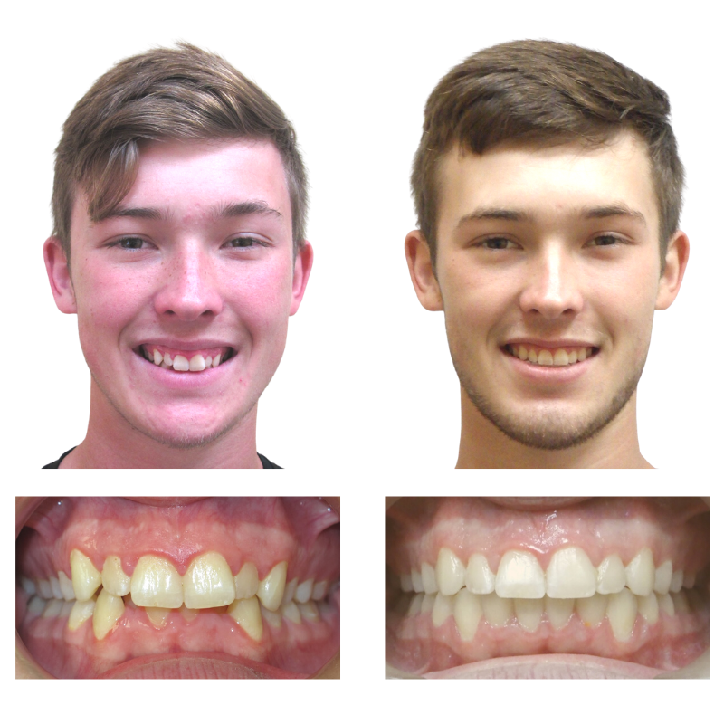 smile results orthodontics